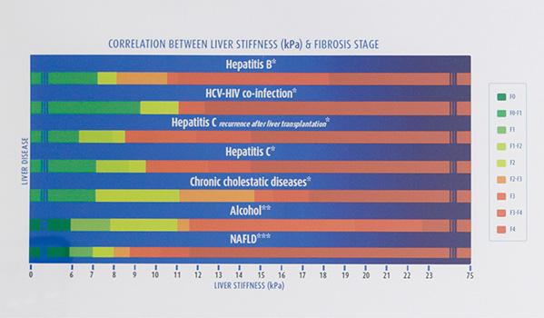fibroscan-fibroscore